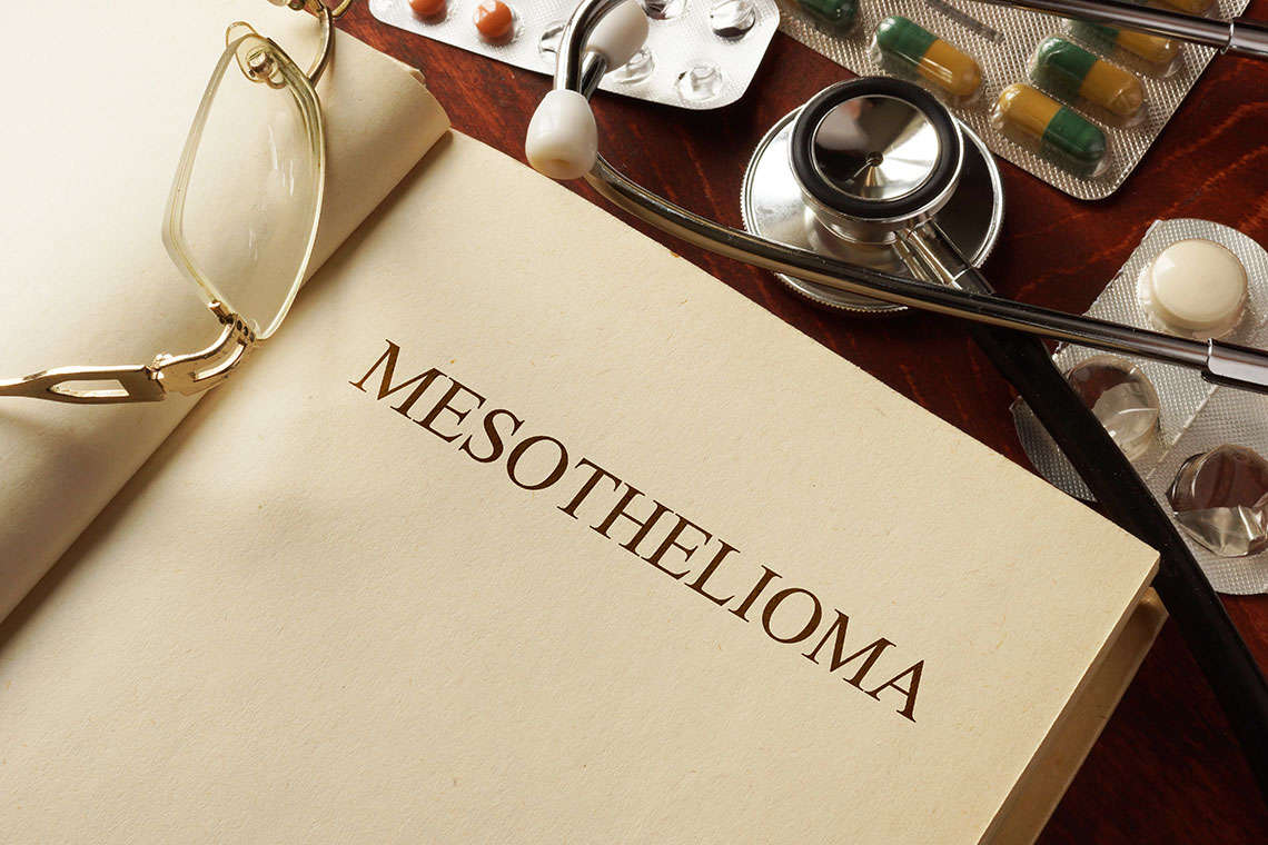 mesothelioma-five-things-1